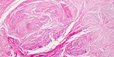 Scar Tissue (That I Wish You Saw)